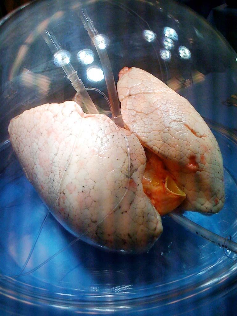 Lung regeneration via 3d technique