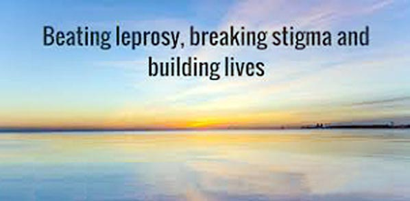 Leprosy victims deserve to live with dignity