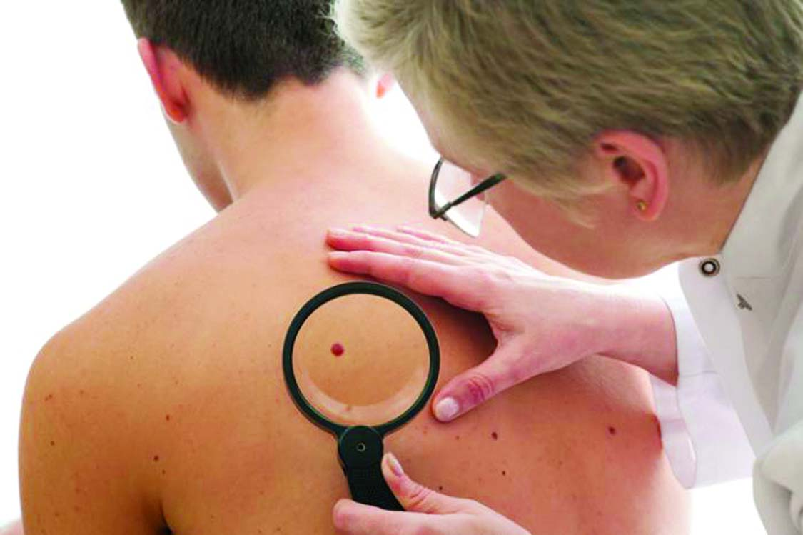 Common  BP  lowering drugs  linked to skin cancer