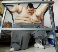 Mexican man, once the world's fattest, dreams of walking again