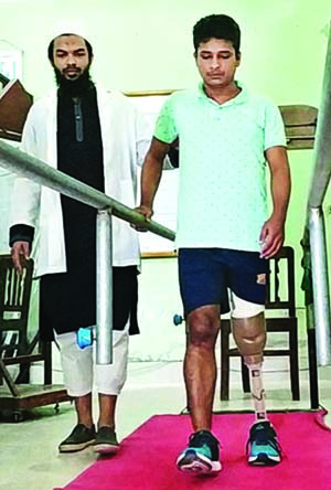 Russel gets new life with prosthetic leg