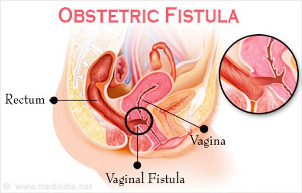 Aftermath of Obstetric Fistula