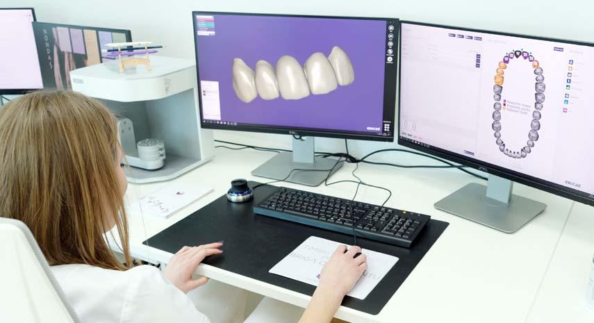 Dental Implants for Longer-Lasting Smile