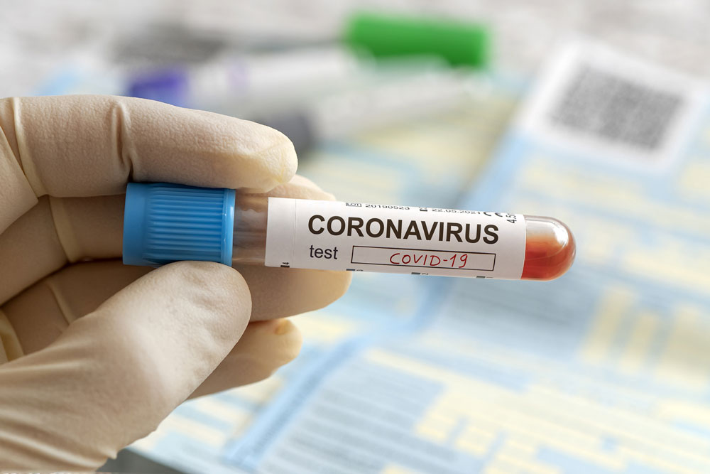 Coronavirus: BSMMU professor tests positive