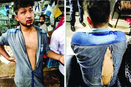 16 injured in BCL factional clash at CMCH