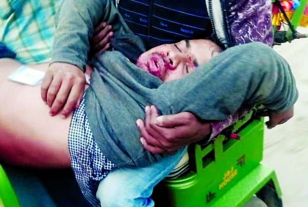 AL factional clash leaves 50 injured in Noakhali